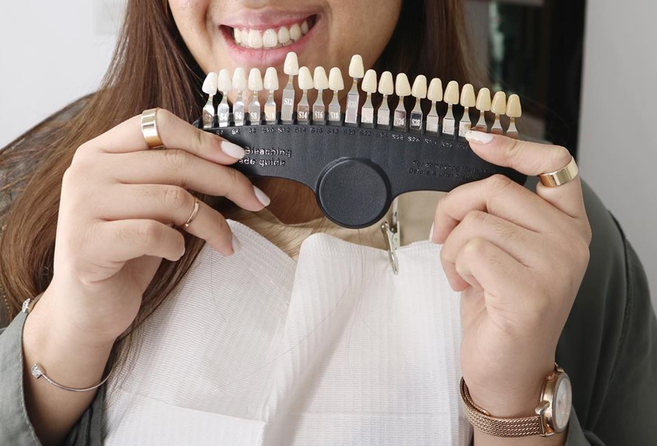 Get Instant White Teeth at The Smile Bar PH